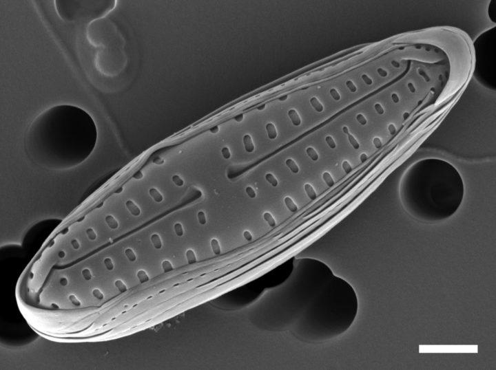 Scanning electron micrograph of diatom Poulinea lepidochelicola